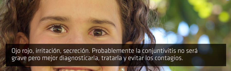 Conjuntivitis - ICOftlamologia