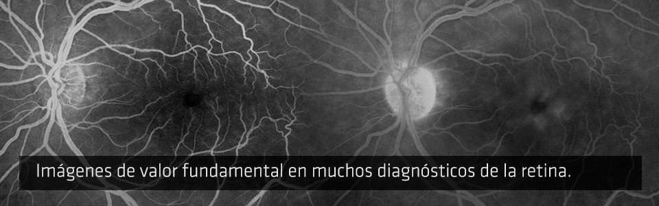 Angiografía con Fluoresceína - AGF - ICOftalmología
