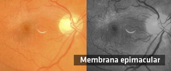 Membrana Epimacular - ICOftalmología