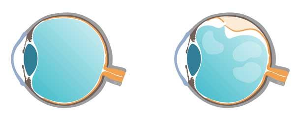 Retina sana vs Retina desprendida - ICOftlamología