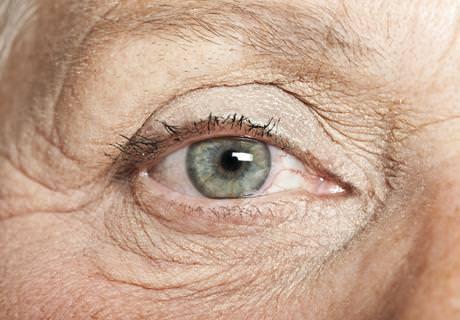 Glaucoma - ICOftalmología