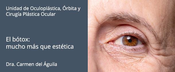 Bótox - Innova ocular ICO Barcelona