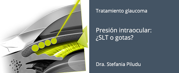 Tratamiento Glaucoma - SLT - IO·ICO Barcelona