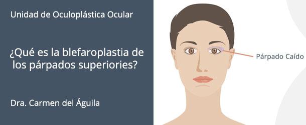 ¿Qué es la blefaroplastia de los párpados superiores? - IO·ICO Barcelona