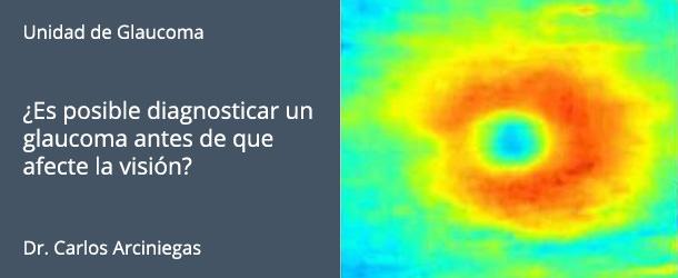 ¿Es posible diagnosticar un glaucoma antes de que afecte la visión? - IO·ICO Barcelona