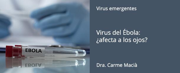 Virus del Ébola: ¿afecta a los ojos? - IO·ICO Barcelona