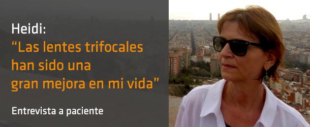 Heidi - Paciente lentes trifocales - IO ICO Barcelona
