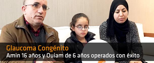 Glaucoma Congénito - IO ICO Barcelona