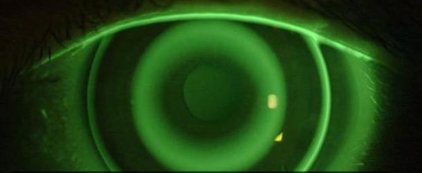 El control de la miopía Orto-K y sus alternativas