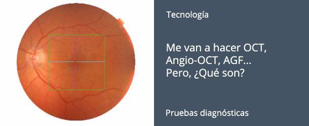 OCT - Angio-OCT - ¿Qué son? - IO·ICO Barcelona
