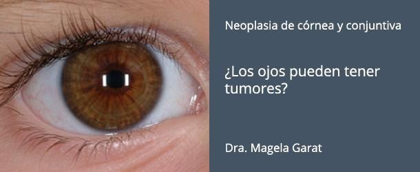 Neoplasia - ¿Los ojos pueden tener tumores? - IO·ICO Barcelona