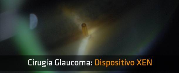 Cirugía glaucoma: Dispositivo o Implante XEN - ICOftalmología