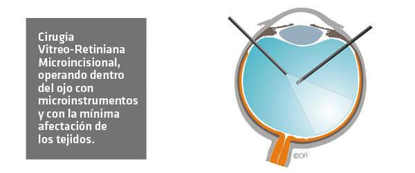 Cirugía Vitro-Retiniana Microincisional - ICOftalmología