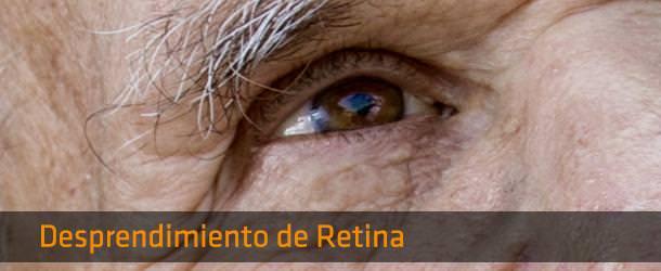 Cirugía desprendimiento de Retina - ICOftalmología