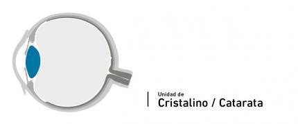 Unité du cristallin - cataractes